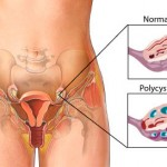 Do I Have PCOS? The Ultimate Guide to PCOS Diagnosis