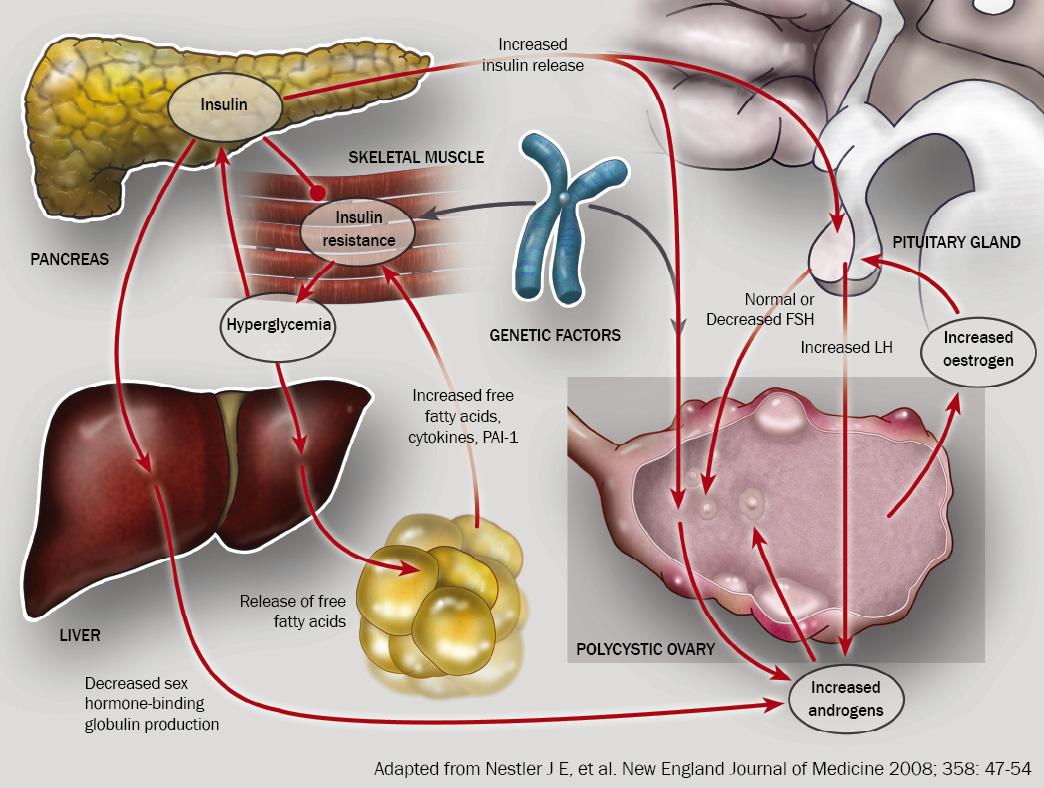 polycystic ovarian syndrome symptoms